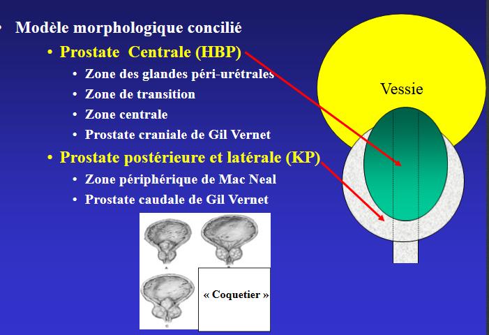 prostate centrale et prostate périphérique
